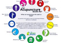 Acupuncture Benefits for Your Health