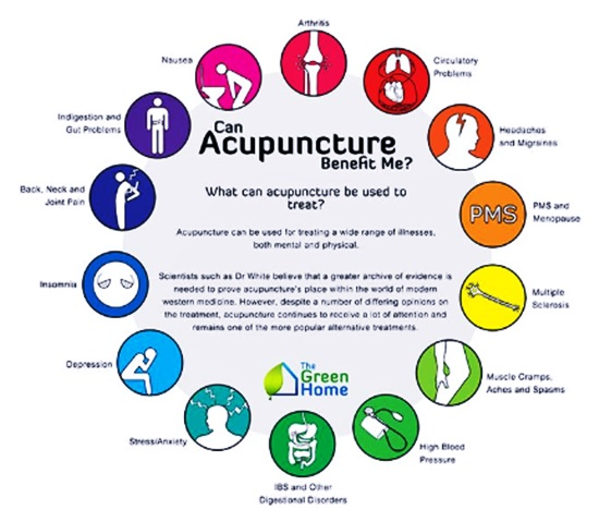 Photo of Acupuncture Benefits for Your Health