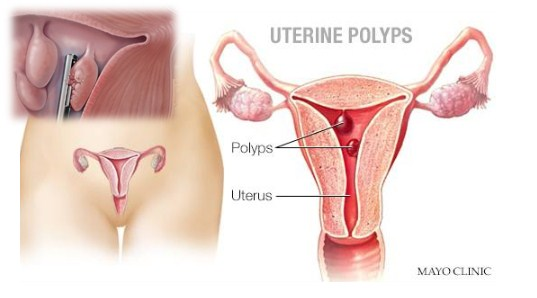 How is uterine polyp diagnosed