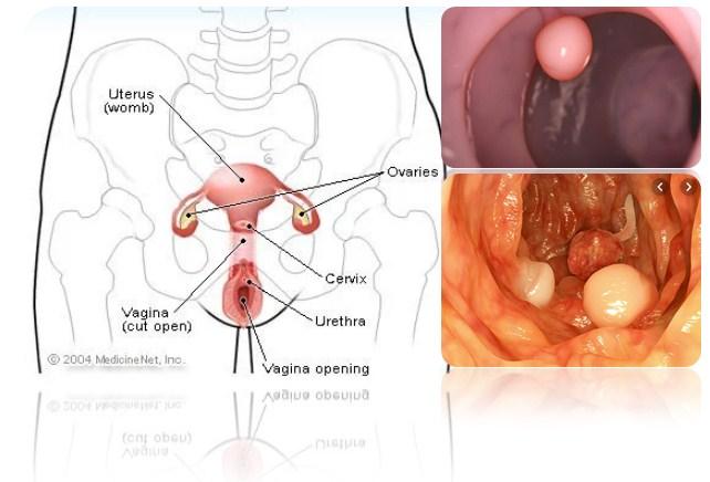 5 Factors That Cause Uterine Polyps In Women