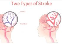 2 Types Of Strokes And Effective Ways To Treat Them