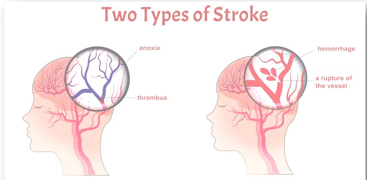 Photo of 2 Types Of Strokes And Effective Ways To Treat Them