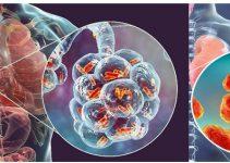 Pneumonia Virus China