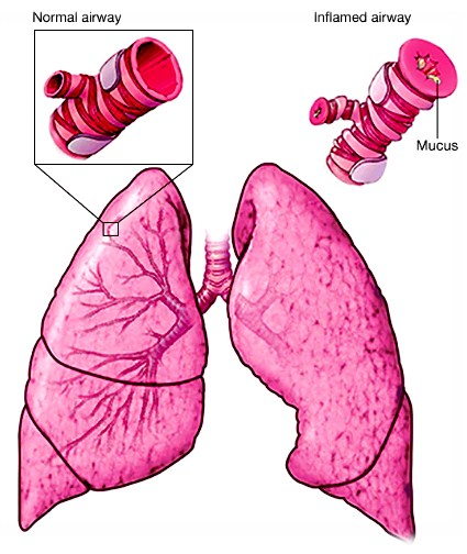 Photo of Symptoms For Asthma Attack
