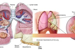 MESOTHELIOMA and THE SYMPTOMS
