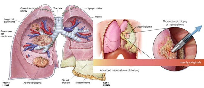 Photo of Mesothelioma Symptoms