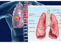THE LUNG CANCER