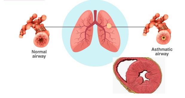 Asthma a Chronic Disease
