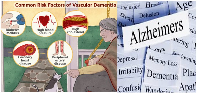 Photo of Difference Between Alzheimer's And Dementia