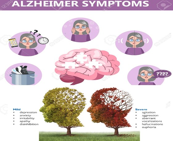 Photo of What Is The Alzheimer's Disease