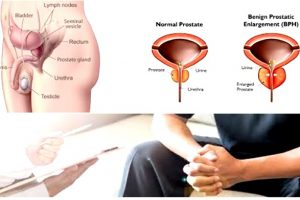 What Are Enlarged Prostate Symptoms
