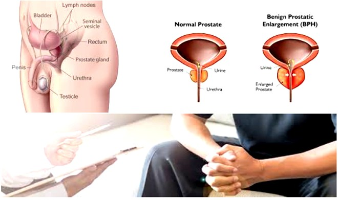 Photo of What Are Enlarged Prostate Symptoms