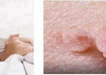 Sexually Transmitted Diseases That Cause Bleeding
