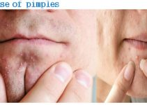 What Cause Of Pimples
