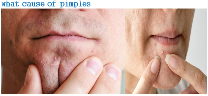 Photo of What Cause Of Pimples