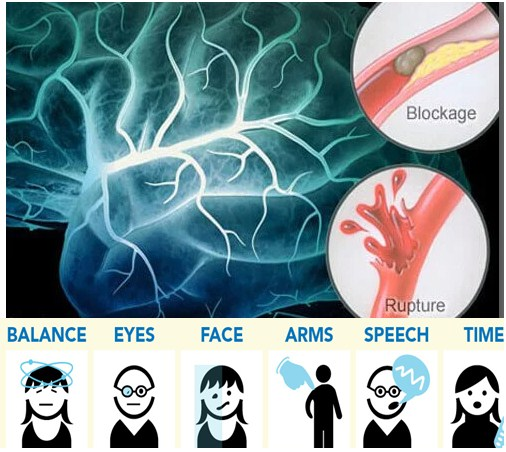 Photo of What Is Stroke Symptoms