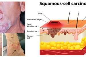 Squamous Cell Carcinoma Throat