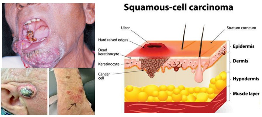 Photo of Squamous Cell Carcinoma Throat