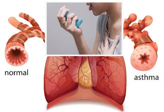 Photo of Traditional Treatment For Asthma