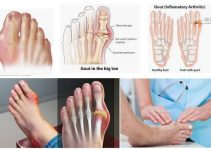 What Is Gout On The Feet