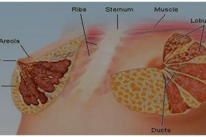 SOME TYPES OF LUMPS BREAST