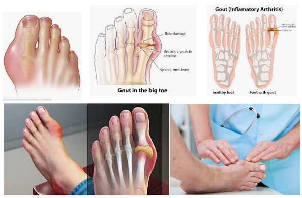 Photo of What Is Gout On The Feet