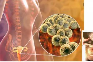 GONORRHOEA DISEASES