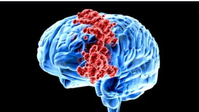 Photo of BRAIN CANCER