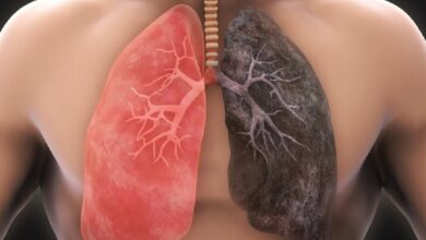 Photo of Not A Smokers But Have Lung Cancer