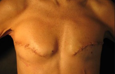Signs Of Breast Cancer In Men