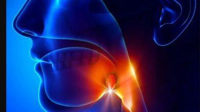 Natural Ways to Prevent Tonsillitis