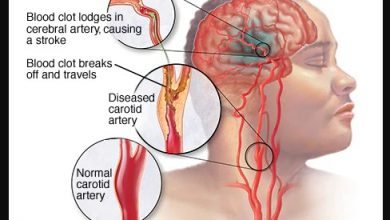 Photo of Causes of Stroke