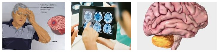 5 Habits That Trigger Brain Cancer