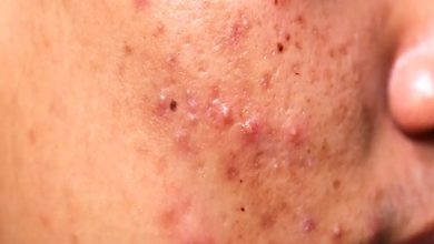 Photo of Why Is It Bad To Pop Your Pimples