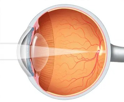 How To Stop NearsightednessFrom Getting Worse
