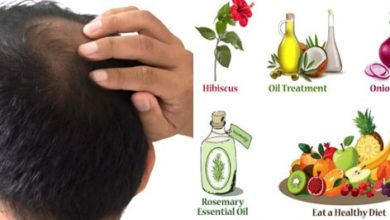 Healthy Food to Avoid Baldness