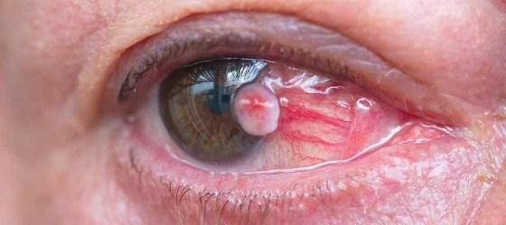 Eye CancerSymptoms
