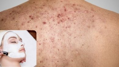 Photo of 3 Natural Treatment for Acne