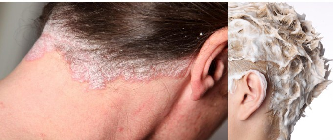 Causes Of DandruffIn Hair