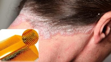 Photo of Causes Of DandruffIn Hair