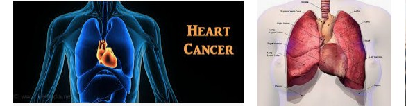 Heart Cancer Symptoms