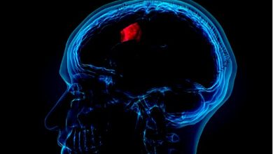 Photo of Signs Of Brain Cancer,Tumor