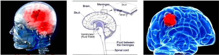 Signs Of Brain Cancer,Tumor