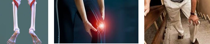 How To Fix Your Knee Pain