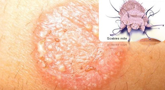 The Difference Between Ringworm And Scabies On The Skin
