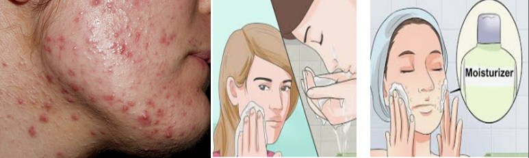 Causes Of Pimples In Adolescent