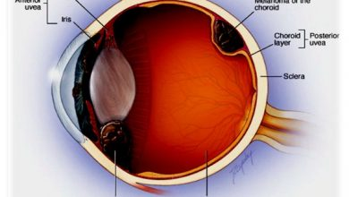 Causes AndSymptoms Of Eye Cancer