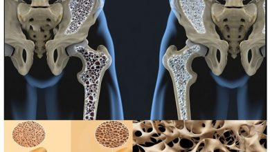 Photo of Cardio Exercise Should be Avoided by People with Osteoporosis
