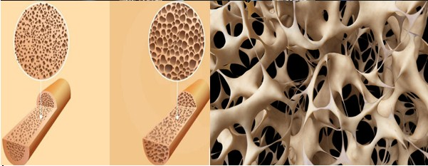 Cardio Exercise Should be Avoided by People with Osteoporosis