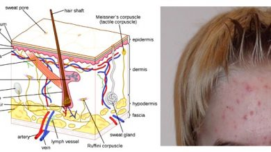 Photo of Here are 6 Types of Acne You Need to Know